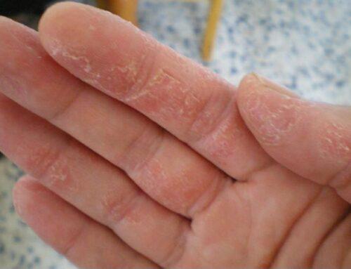El daño en las manos en época de pandemia