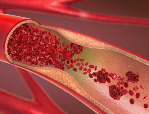 La hipertensión arterial altera la estructura de las arterias